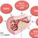 高血糖 高コレステロール